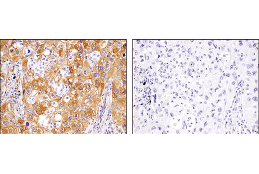 Immunohistochemical analysis of paraffin-embedded human non-small cell lung carcinoma using p130 Cas (E1L9H) Rabbit mAb in the presence of control peptide (left) and antigen-specific peptide (right).