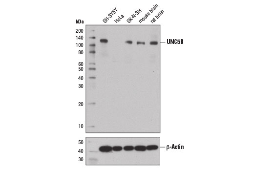 Western blot analysis of extracts from various cell lines and tissues using UNC5B (D9M7Z) Rabbit mAb (upper) and β-Actin (D6A8) Rabbit mAb #8457 (lower).