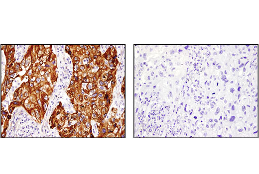Immunohistochemical analysis of paraffin-embedded human lung non-small cell carcinoma using PGRMC1 (D6M5M) XP<sup>®</sup> Rabbit mAb in the presence of control peptide (left) or antigen-specific peptide (right).