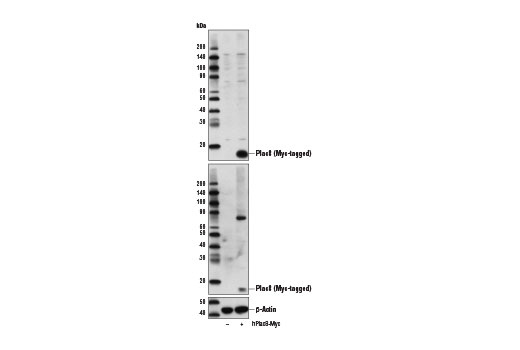 Western blot analysis of extracts from 293 cells, mock transfected (-) or transfected with a construct expressing Myc-tagged full-length human Plac8 protein (hPlac8-Myc; +), using Plac8 (E1J2Z) Rabbit mAb (upper), Myc-Tag (71D10) Rabbit mAb #2278 (middle), and β-Actin (D6A8) Rabbit mAb #8457 (lower).
