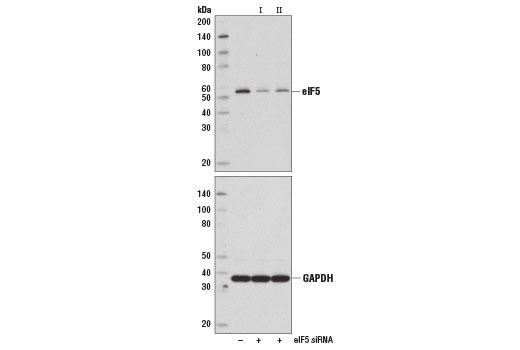 Monoclonal Antibody - eIF5 (D5G9) Rabbit mAb - Western Blotting, UniProt ID P55010, Entrez ID 1983 #13894, Protein Translation