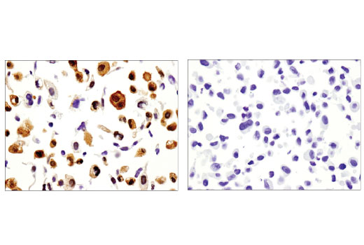 Immunohistochemical analysis of paraffin-embedded A549 (left) and LNCaP (right) cell pellets using Galectin-1/LGALS1 (D608T) Rabbit mAb (IHC Formulated).