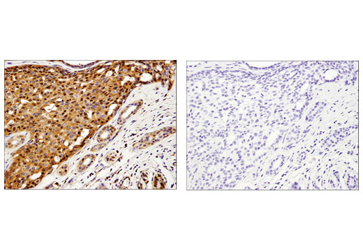 Immunohistochemical analysis of paraffin-embedded human breast carcinoma using Galectin-1/LGALS1 (D608T) Rabbit mAb (IHC Formulated) in the presence of control peptide (left) or antigen specific peptide (right).