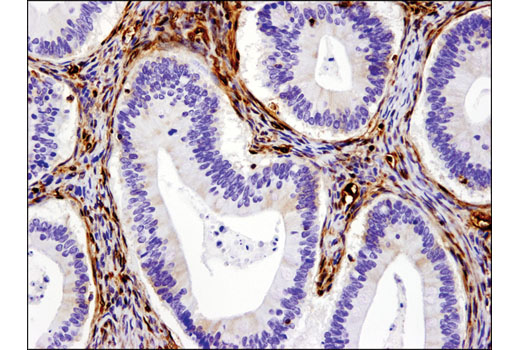 Immunohistochemical analysis of paraffin-embedded human ovarian mucinous cystadenocarcinoma using Galectin-1/LGALS1 (D608T) Rabbit mAb (IHC Formulated).