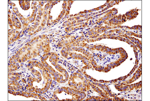 Immunohistochemical analysis of paraffin-embedded human thyroid papillary carcinoma using PLD2 (E1Y9L) Rabbit mAb (IHC Specific).