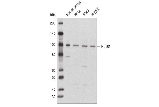 Western blot analysis of extracts from various tissues and cell lines using PLD2 (E1Y9G) Rabbit mAb.