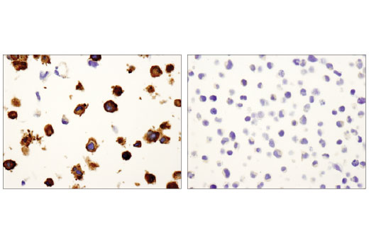 Immunohistochemical analysis of paraffin-embedded Hs578T (left) and Jurkat (right) cell pellets using Vinculin (E1E9V) XP(R) Rabbit mAb.