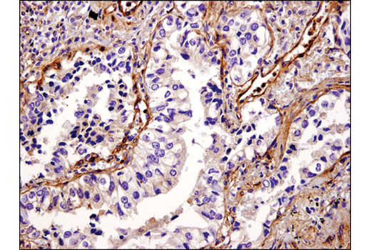 Immunohistochemical analysis of paraffin-embedded human non-small cell lung carcinoma using Vinculin (E1E9V) XP<sup>®</sup> Rabbit mAb.