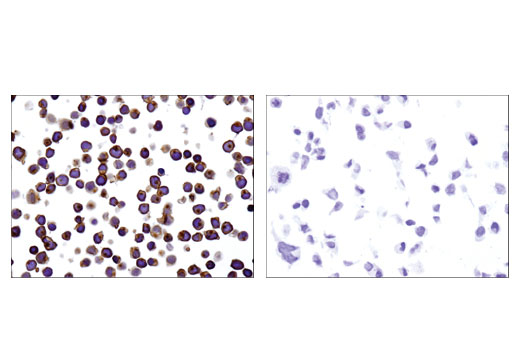Immunohistochemical analysis of paraffin-embedded Jurkat (left) and 293 (right) cell pellets using CD45 (D9M8I) XP<sup>®</sup> Rabbit mAb.