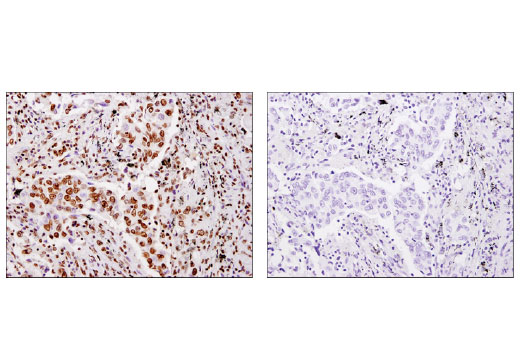 Immunohistochemical analysis of paraffin-embedded human non-small cell lung carcinoma using Histone H4 (D2X4V) Rabbit mAb in the presence of control peptide (left) or antigen-specific peptide (right).