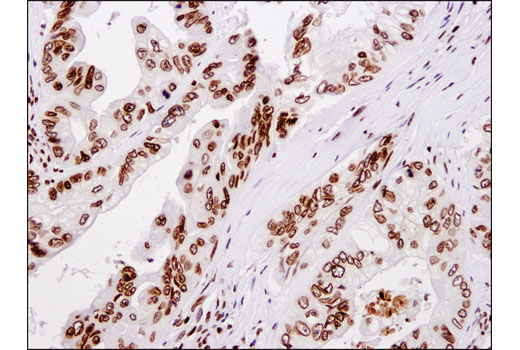 Immunohistochemical analysis of paraffin-embedded human colon carcinoma using Histone H4 (D2X4V) Rabbit mAb.