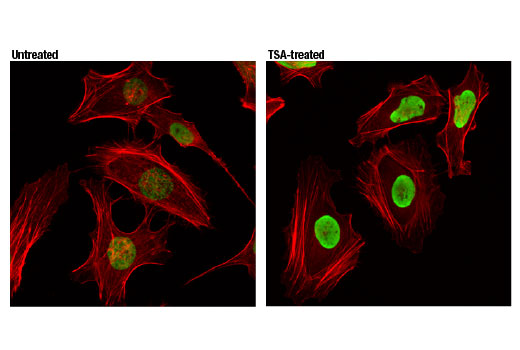 Confocal immunofluorescent analysis of HeLa cells untreated (left) or treated (right) with Trichostatin A (TSA) #9950 (1 µM, 4 hr) using Acetyl-Histone H4 (Lys12) (D2W60) Rabbit mAb (green). Actin filaments were labeled with DyLight™ 554 Phalloidin #13054 (red).