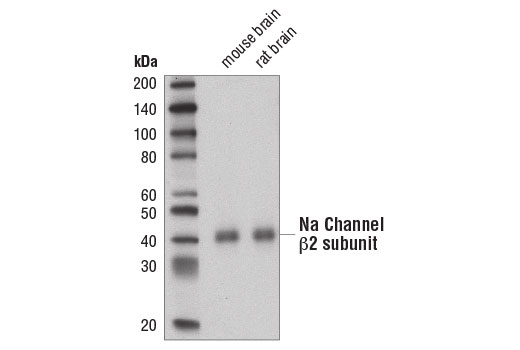Monoclonal Antibody Sodium Channel Regulator Activity