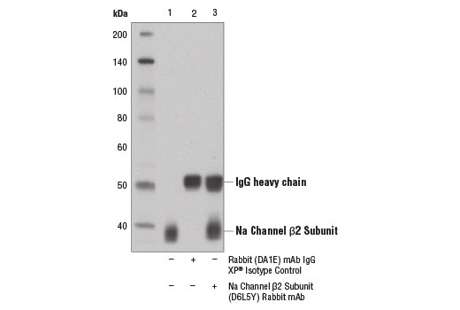 Immunoprecipitation of Na channel β2 subunit from mouse brain extracts using Rabbit (DA1E) mAb IgG XP<sup>®</sup> Isotype Control #3900 (lane 2) or Na Channel β2 Subunit (D6L5Y) Rabbit mAb (lane 3). Lane 1 is 10% input. Western blot analysis was performed using Na Channel β2 Subunit (D6L5Y) Rabbit mAb.