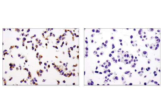 Immunohistochemical analysis of paraffin-embedded Hep G2 (left) and MCF7 (right) cell pellets using MDR1/ABCB1 (E1Y7S) Rabbit mAb.