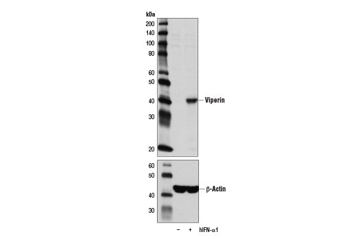 Western blot analysis of extracts from U-937 cells, untreated (-) or treated with Human Interferon-α1 (hIFN-α1) #8927 (10 ng/ml, 16 hr; +), using Viperin (D5T2X) Rabbit mAb (upper) and β-Actin (D6A8) Rabbit mAb #8457 (lower).