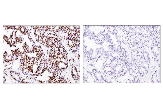 Immunohistochemical analysis of paraffin-embedded breast adenocarcinoma using Acetyl-Histone H3 (Lys18) (D8Z5H) Rabbit mAb in the presence of non-acetyl-Histone H3 peptide (left) or acetyl-Histone H3 (Lys18) peptide (right).