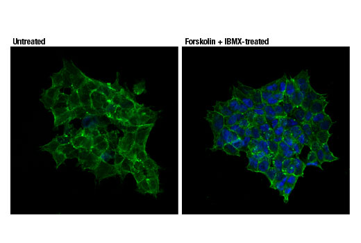 Confocal immunofluorescent analysis of SK-N-MC cells (serum-starved overnight), untreated (left) or treated with IBMX (0.5 mM) and Forskolin #3828 (30 μM, 30 min; right), using Phospho-CREB (Ser133) (87G3) Rabbit mAb (Alexa Fluor<sup>®</sup> 647 Conjugate) (blue pseudocolor). Actin filaments were labeled with Alexa Fluor<sup>®</sup> 488 Phalloidin #8878 (green).