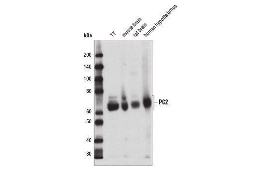 Western blot analysis of extracts from TT, mouse brain, rat brain, and human hypothalamus, using PC2 (D1E1S) XP<sup>®</sup> Rabbit mAb.