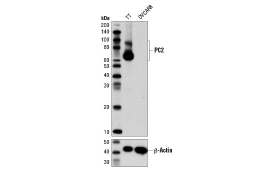 Western blot analysis of extracts from TT and OVCAR8 cells using PC2 (D1E1S) XP<sup>®</sup> Rabbit mAb (upper) and β-Actin (D6A8) Rabbit mAb #8457 (lower).