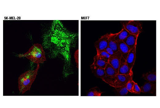 Confocal immunofluorescent analysis of SK-MEL-28 (positive, left) or MCF7 (negative, right) cells, using PRNP (D3Q5C) Rabbit mAb (green). Actin filaments were labeled with DyLight™ 554 Phalloidin #13054 (red). Blue pseudocolor = DRAQ5<sup>®</sup> #4084 (fluorescent DNA dye).