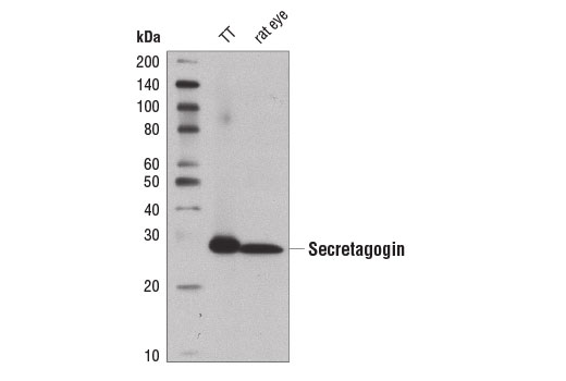 Western blot analysis of extracts from TT cells and rat eye using Secretagogin (D4V1Y) XP<sup>®</sup> Rabbit mAb.