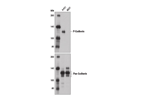 Western blot analysis of extracts from A-431 (positive) and MCF7 (negative) cells using P-Cadherin (12H6) Mouse mAb (upper) and Pan-Cadherin (28E12) Rabbit mAb #4073 (lower).