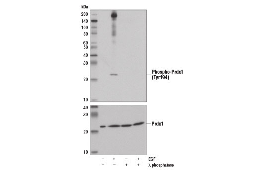 Western blot analysis of extracts from A-431 cells, untreated or treated with EGF (50 ng/ml, 15 min), λ phosphatase (13333 Unit/ml, overnight) using Phospho-Prdx1 (Tyr194) (D1T9C) Rabbit mAb (upper) and Prdx1 (D5G12) Rabbit mAb #8499 (lower).