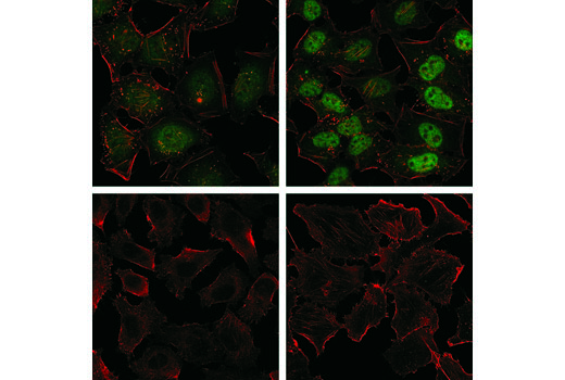 Confocal immunofluorescent analysis of HeLa cells (serum-starved overnight), untreated (upper left) or treated with Human Interferon-α1 (hIFN-α1) (1,000 units/ml, 30 min; upper right), and PC-3 cells (serum-starved overnight), untreated (lower left) or treated with Human Interferon-α1 (hIFN-α1) (1,000 units/ml, 30 min; lower right), using Stat3 (D3Z2G) Rabbit mAb (Alexa Fluor® 488 Conjugate) (green) and β-Actin (8H10D10) Mouse mAb #3700 (red).