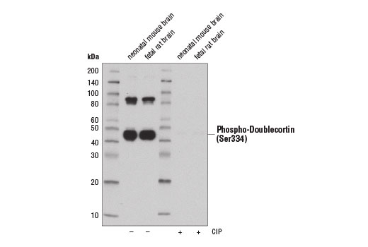 Western blot analysis of extracts from neonatal mouse brain and fetal rat brain using Phospho-Doublecortin (Ser334) (D11B10) Rabbit mAb. The phospho-specificity of the antibody was verified by treating the membrane with (+) or without (-) calf intestinal phosphatase (CIP) after protein transfer.