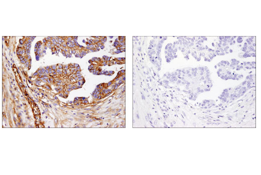 Immunohistochemical analysis of paraffin-embedded ovarian carcinoma using B7-H3 (D9M2L) XP<sup>®</sup> Rabbit mAb in the presence of control peptide (left) or antigen-specific peptide (right).