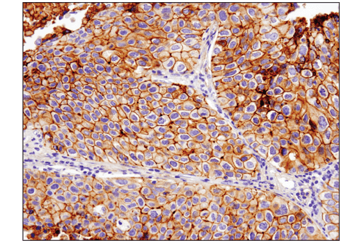 Immunohistochemical analysis of paraffin-embedded human non-small cell lung carcinoma using B7-H3 (D9M2L) XP<sup>®</sup> Rabbit mAb performed on the Leica® BOND™ Rx.