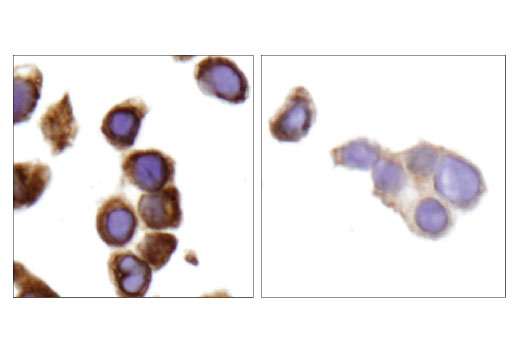 Immunohistochemical analysis of paraffin-embedded HT-29 cell pellets, untreated (left) or lyric shRNA-treated (right), using Lyric/Metadherin (D5Y8R) XP<sup>®</sup> Rabbit mAb.
