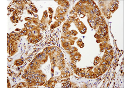 Immunohistochemical analysis of paraffin-embedded human colon carcinoma using Lyric/Metadherin (D5Y8R) XP<sup>®</sup> Rabbit mAb.