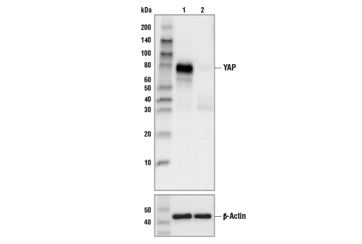 Western blot analysis of HeLa cell extracts, untreated (-) or YAP knock-out (+), using YAP (D8H1X) XP® Rabbit mAb, #14074 (upper) or β-actin (13E5) Rabbit mAb #4970 (lower).