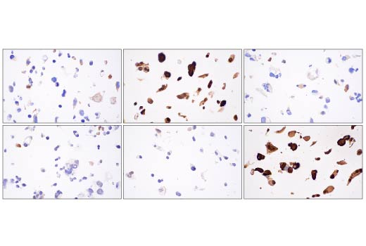 Image 31: Hippo Pathway: Upstream Signaling Antibody Sampler Kit
