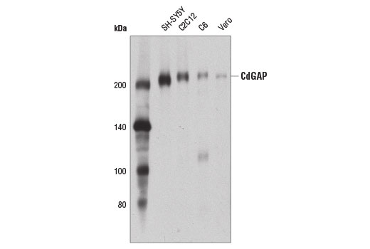 Western blot analysis of extracts from various cell lines using CdGAP (D6J9G) Rabbit mAb.