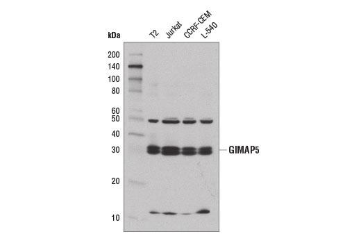 Polyclonal Antibody - GIMAP5 Antibody - Immunoprecipitation, Western Blotting, UniProt ID Q96F15, Entrez ID 55340 #14108 - Primary Antibodies