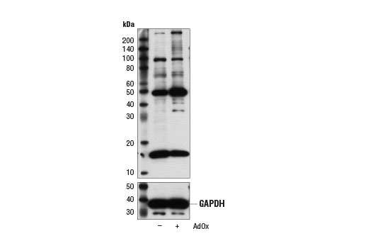 Western Blotting Image 1: Di-Methyl Lysine Motif [dme-K] MultiMab™ Rabbit mAb mix