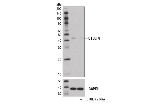 Western blot analysis of extracts from 293T cells, transfected with 100 nM SignalSilence<sup>®</sup> Control siRNA (Unconjugated) #6568 (-) or SignalSilence<sup>® </sup>OTULIN siRNA I #14132 (+), using OTULIN Antibody (upper) and GAPDH (D16H11) XP<sup>®</sup> Rabbit mAb #5174 (lower). The OTULIN Antibody confirms silencing of OTULIN expression, while the GAPDH (D16H11) XP<sup>®</sup> Rabbit mAb is used as a loading control.