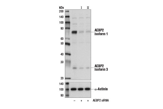 Western blot analysis of extracts from HeLa cells, transfected with 100 nM SignalSilence<sup>®</sup> Control siRNA (Unconjugated) #6568 (-), SignalSilence<sup>®</sup> AEBP2 siRNA I #14711 (+), or SignalSilence<sup>®</sup> AEBP2 siRNA II #14713 (+), using AEBP2 (D7C6X) Rabbit mAb (upper) or α-Actinin (D6F6) XP<sup>®</sup> Rabbit mAb #6487 (lower). The AEBP2 (D7C6X) Rabbit mAb confirms silencing of AEBP2 expression, while the α-Actinin (D6F6) XP<sup>®</sup> Rabbit mAb is used as a loading control.