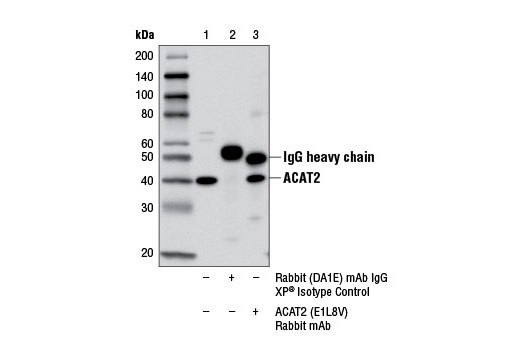 Immunoprecipitation Image 1: ACAT2 (E1L8V) Rabbit mAb