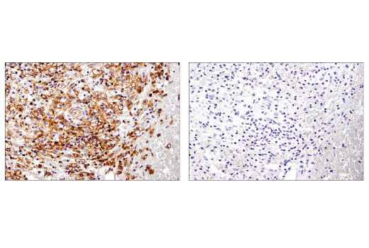Immunohistochemical analysis of paraffin-embedded human breast carcinoma using Spinophilin (E1E7R) Rabbit mAb in the presence of control peptide (left) or antigen-specific peptide (right).