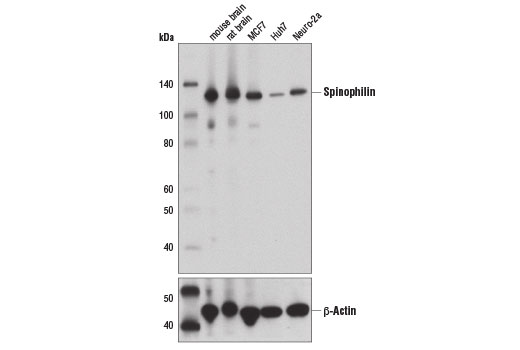 Western blot analysis of extracts from various tissues and cell lines using Spinophilin (E1E7R) Rabbit mAb (upper) and β-Actin (D6A8) Rabbit mAb #8457 (lower).
