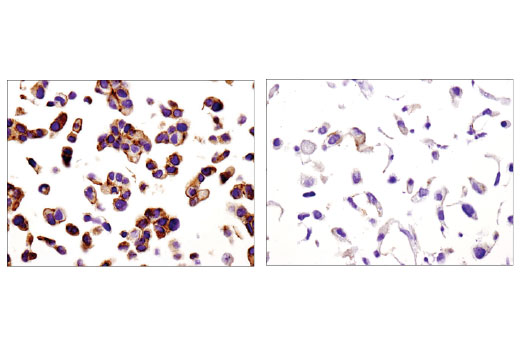 Immunohistochemical analysis of paraffin-embedded MCF7 (left) and Huh7 (right) cell pellets using Spinophilin (E1E7R) Rabbit mAb.