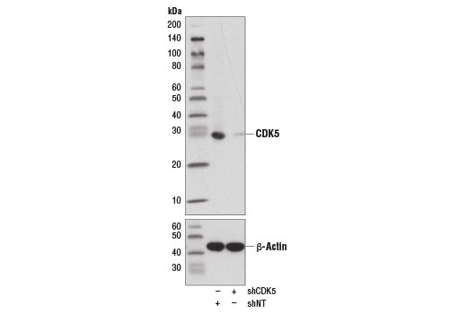 Western blot analysis of extracts from HeLa cells expressing either shCDK5 or non-targeting shRNA (shNT), using CDK5 (D1F7M) Rabbit mAb (upper) or β-Actin (D6A8) Rabbit mAb #8457 (lower).
