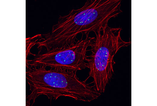 Confocal immunofluorescent analysis of HeLa cells using Coilin (D2L3J) XP<sup>®</sup> Rabbit mAb (green). Actin filaments were labeled with DyLight™ 554 Phalloidin #13054 (red). Blue pseudocolor= DRAQ5<sup>®</sup> #4084 (fluorescent DNA dye).