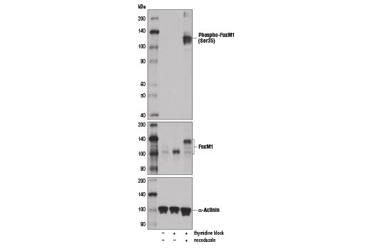 Polyclonal Antibody - Phospho-FoxM1 (Ser35) Antibody - Western Blotting, UniProt ID Q08050, Entrez ID 2305 #14170 - Primary Antibodies