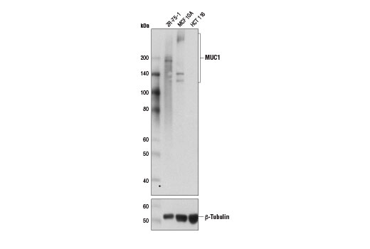 Western blot analysis of extracts from ZR-75-1, MCF 10A, and HCT 116 cells using MUC1 (D9O8K) XP<sup>®</sup> Rabbit mAb (upper) and β-Tubulin Antibody #2146 (lower).