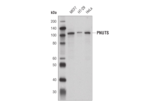 Western blot analysis of extracts from MCF7, HT-29 and HeLa cells using PNUTS Antibody.